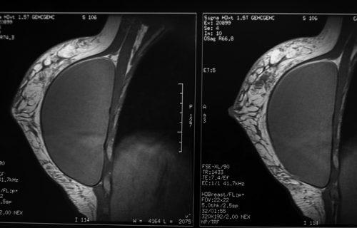 Schadensersatz und Schmerzensgeld bei fehlerhaften Brustimplantaten